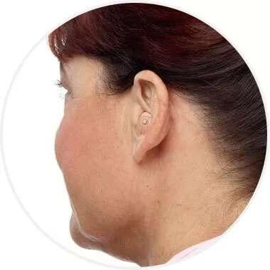 Woman wearing half-shell hearing aid